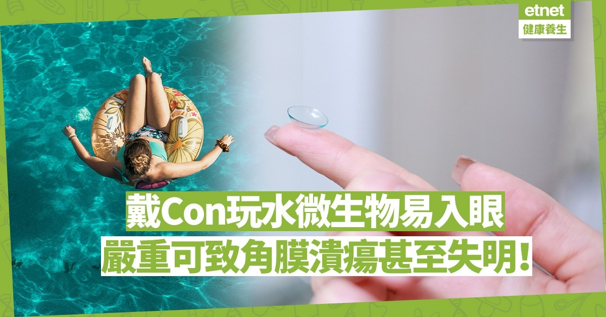 戴隱形眼鏡游泳、洗澡或致失明!除了配有度數泳鏡,醫生還有一個折衷方法!
